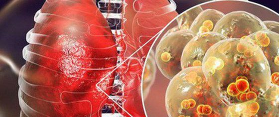 Bệnh viêm phổi lạ Trung Quốc