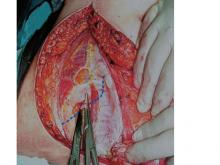 Phần thành mạch bên trong thượng v