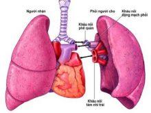 Quy trình ghép phổi